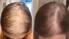 """Atgūstiet veselīgus matus klīnikā """"Rubenhair"""""""