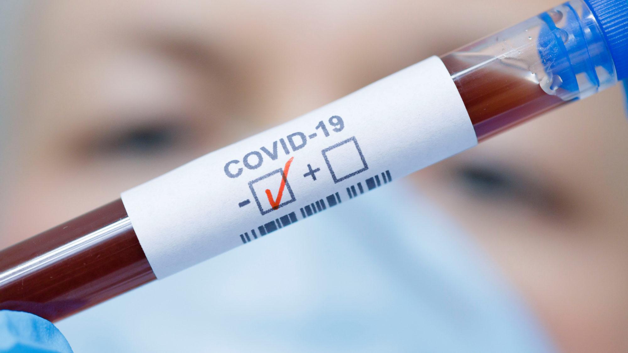 Латвии хватает тестов на «Covid-19»